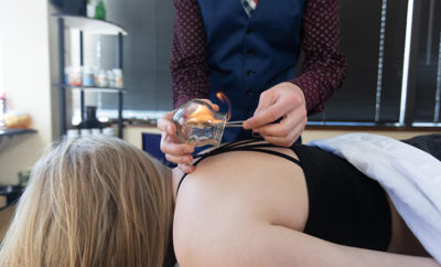 fire-cupping